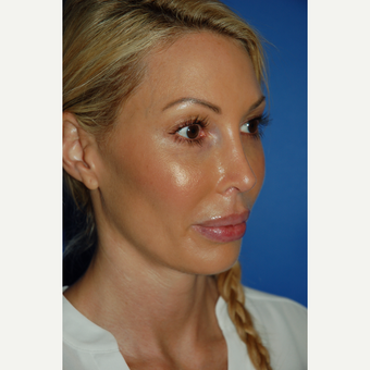 35-44 year old woman treated with Revision Rhinoplasty after 3288680