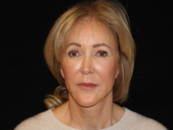 65-74 year old woman treated with Facelift, quad blepharoplasty 2509133