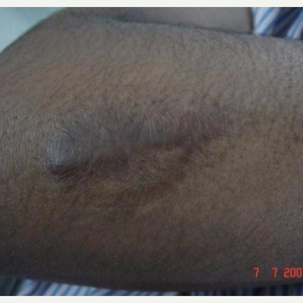 25-34 year old man treated with Scar Removal