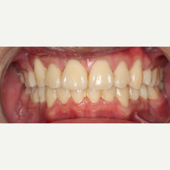 25-34 year old man treated with Braces after 3188546