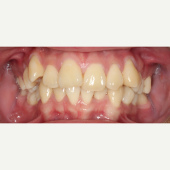 25-34 year old man treated with Braces before 3188546
