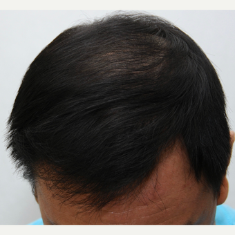25-34 year old man treated with ARTAS Robotic Hair Transplant after 3697148