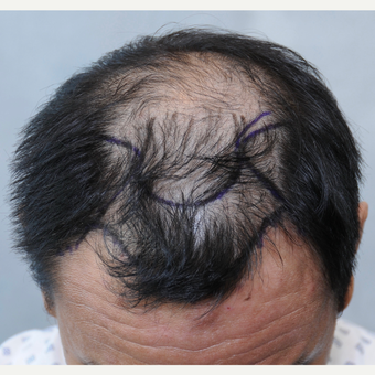 25-34 year old man treated with ARTAS Robotic Hair Transplant before 3697148