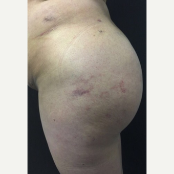 35-44 year old woman treated with Brazilian Butt Lift after 3039510