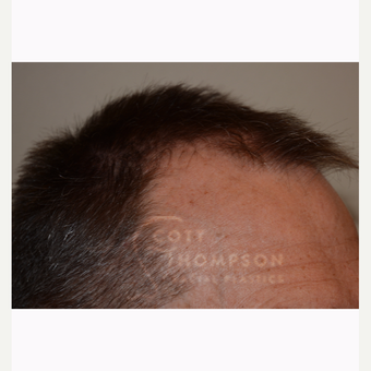 45-54 year old man treated with Hair Transplant before 3430284