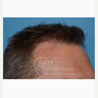 45-54 year old man treated with Hair Transplant after 3430284