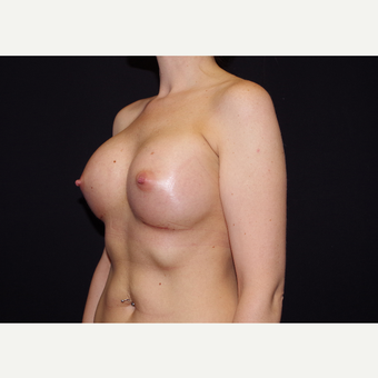 25-34 year old woman treated with Breast Implants after 3441721