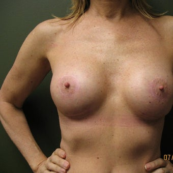 55-64 year old woman treated with Breast Augmentation after 1610451