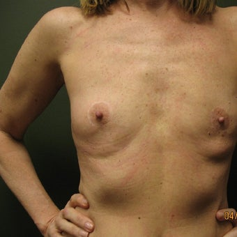 55-64 year old woman treated with Breast Augmentation before 1610451
