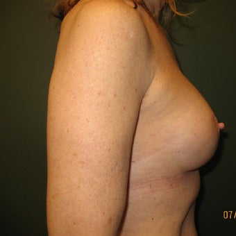 55-64 year old woman treated with Breast Augmentation 1610451