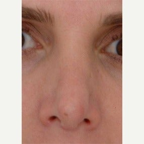 35-44 year old woman treated with Revision Rhinoplasty