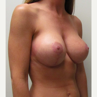 Breast Implant Revision for this 37 Year Old Woman after 3043030