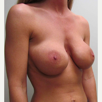 Breast Implant Revision for this 37 Year Old Woman before 3043030