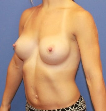 18-24 year old woman.  Breast augmentation with shaped Sientra Breast Implants 1535623