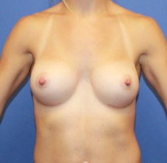 18-24 year old woman.  Breast augmentation with shaped Sientra Breast Implants after 1535623