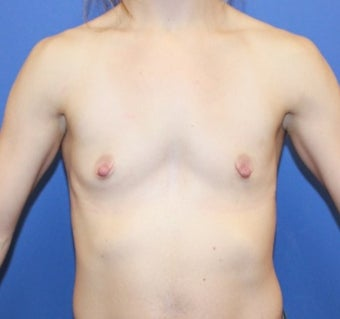 18-24 year old woman.  Breast augmentation with shaped Sientra Breast Implants before 1535623