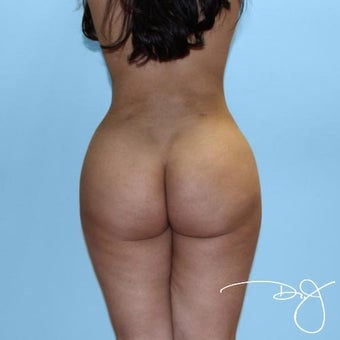 Butt Augmentation  after 1069985