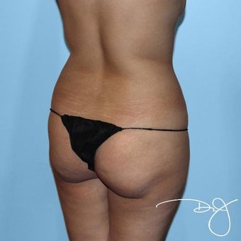 Butt Augmentation  1069985
