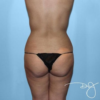 Butt Augmentation  before 1069985