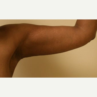 35-44 year old woman treated with Arm Lift after 2039020