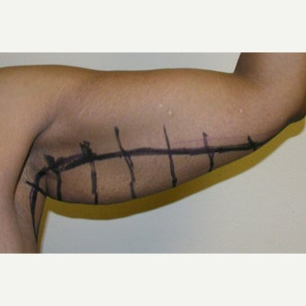 35-44 year old woman treated with Arm Lift before 2039020