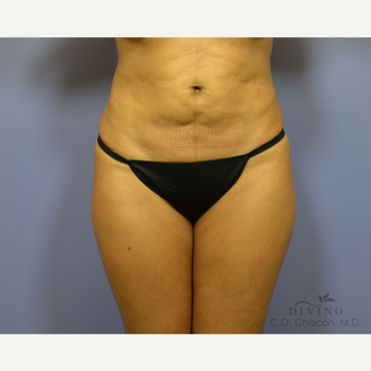 35-44 year old woman treated with Liposuction before 3421355