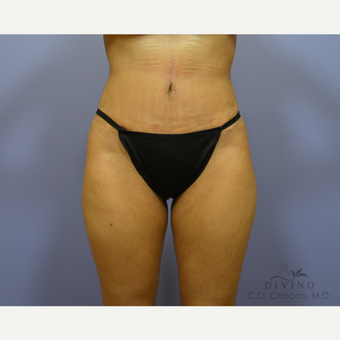 35-44 year old woman treated with Liposuction after 3421355