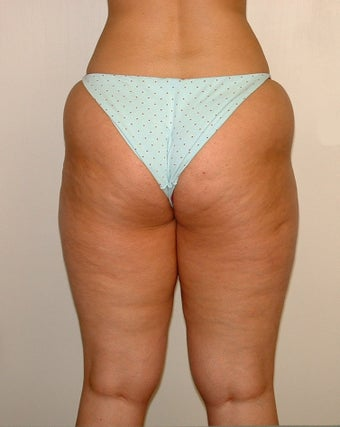 Liposuction 722834