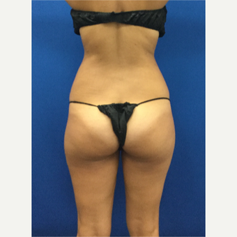 25-34 year old woman treated with Liposuction after 3142398