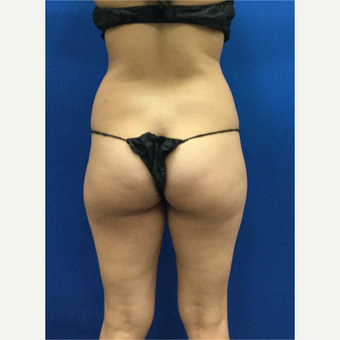 25-34 year old woman treated with Liposuction before 3142398