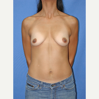 35-44 year old woman treated with Breast Implants before 3090726