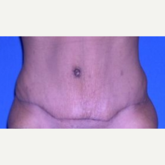 35-44 year old woman treated with Tummy Tuck after 3009720