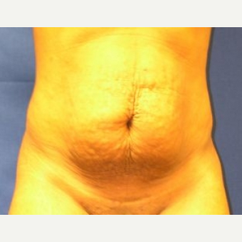 35-44 year old woman treated with Tummy Tuck before 3009720