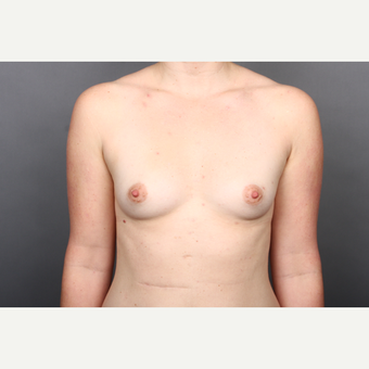 25-34 year old woman treated with Breast Implants before 2984863