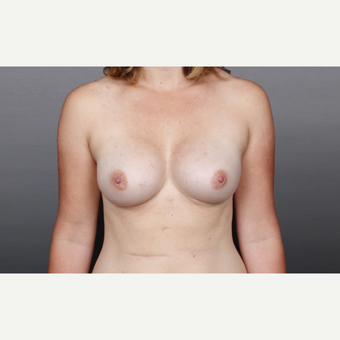 25-34 year old woman treated with Breast Implants after 2984863