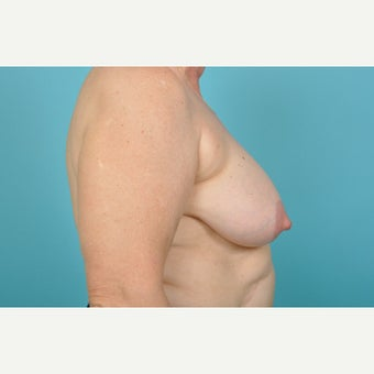 55-64 year old woman treated with Breast Lift 1674889