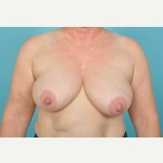 55-64 year old woman treated with Breast Lift before 1674889