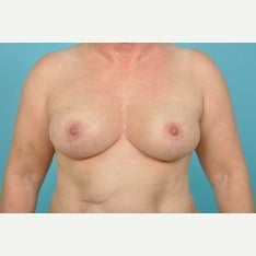 55-64 year old woman treated with Breast Lift after 1674889