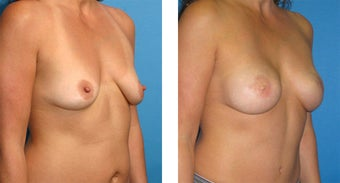 Breast Reconstruction: One-Stage Breast Reconstruction 561797