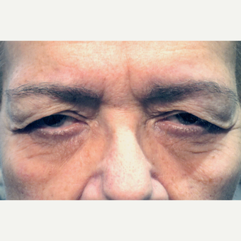 65-74 year old woman treated with Eyelid Surgery before 3151837