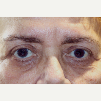 65-74 year old woman treated with Eyelid Surgery after 3151837