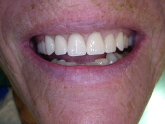 Mini dental implants help stabilize loose dentures after 1168520