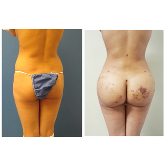 35-44 year old woman treated with Brazilian Butt Lift before 3670770