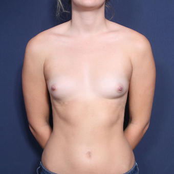 18-24 year old woman treated with Breast Augmentation (view 1 of 2) before 3220366