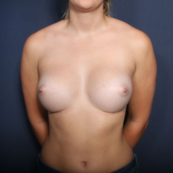 18-24 year old woman treated with Breast Augmentation (view 1 of 2) after 3220366