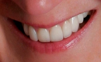 Porcelain Restorations: Bridge, Crowns, and Veneers after 889546