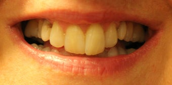 Porcelain Restorations: Bridge, Crowns, and Veneers before 889546