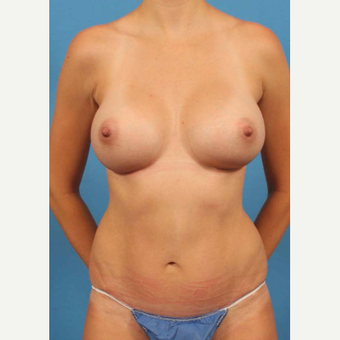 25-34 year old woman treated with Mommy Makeover after 3787192