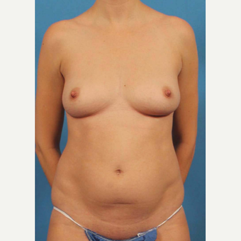 25-34 year old woman treated with Mommy Makeover before 3787192