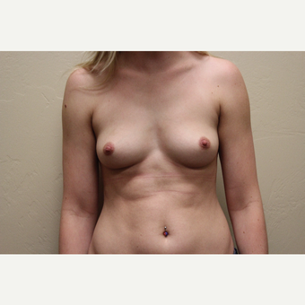 18-24 year old woman treated with Breast Augmentation before 3692010